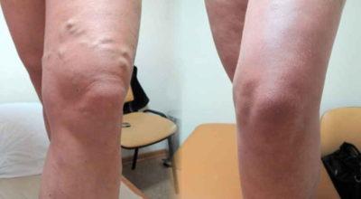 Потрясающая мазь для лечения узлов на ногах — тромбофлебита и варикоза