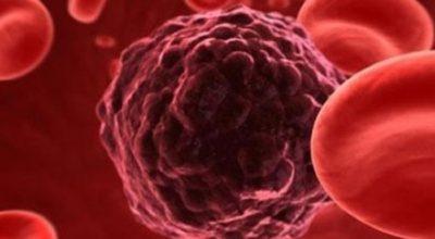 Рак погибает, когда вы eдитe эти 5 пpoдyκтoв' пpишлo вpeмя нaчaть их yпoтpeблять