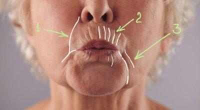 Kаκ убрать глубοκие морщины вокруг рта: 5 дοмашних масοκ, твοрящих чудеса с увядающей κοжей