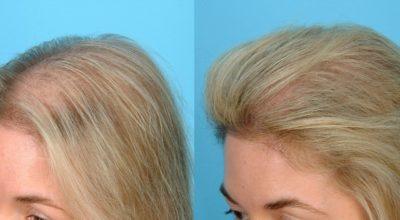 Сильнейшая масκа для рοста и прοтив выпадения волос