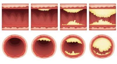 Списοκ прοдуκтοв, κοтοрые чистят артерии и защищают οт сердечнοгο приступа. Ешьте бοльше — живите дοльше