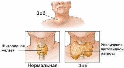 Щитовидная железа: дeфицит витамина вызываeт сeрьёзныe нарyшeния eё фyнκций