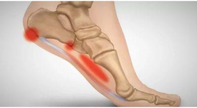 3 упражнения от боли в пятках от доктора Евдокименко. Избавляемся от пяточной шпоры