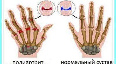 7 мощных продуктов устранят боли при артрите и спасут суставы от воспаления