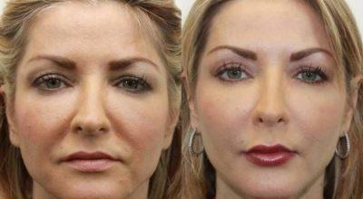 Даже самая дряблая кожа лица подтянется после этой процедуры. Делай это раз в неделю