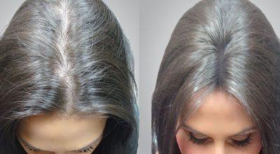 Древний рецепт уникального масла: секрет устранения облысения и экстремально быстрого роста волос