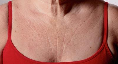 Эти 3 супер средства быстро устранят морщины на груди и шее — вы будете чувствовать себя намного моложе