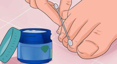 Эти 6 мощных средств устранят даже самый запущенный грибок ногтей