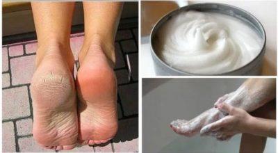 Народное средство для устранения грибков и мозолей на ногах