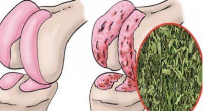 Врач-натуропат для восстановления хрящей коленей, суставов и укрепления костей посоветовал замечательное средство