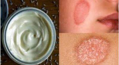 Древний рецепт лечебного крема быстро исцелит от кожных заболеваний, даже от экземы и псориаза