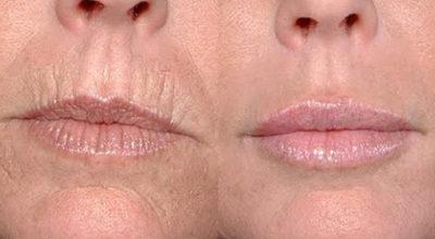 Как легко избавиться от глубоких морщин вокруг рта: 5 простых масок, творящих чудеса со стареющей кожей