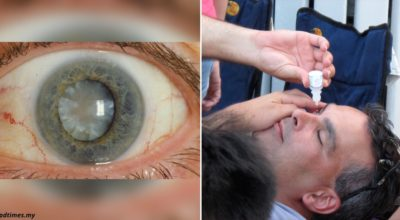 Появились глазные капли, которые могут растворить катаракту