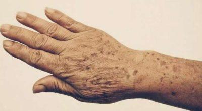 Пятна и морщины на руках: 5 средств для 100% устранения