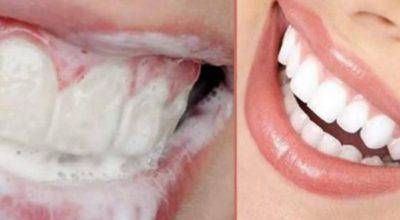 Рецепт, который поможет за несколько дней убрать зубные камни, а также сделать зубы блестяще белыми
