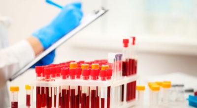 Вот как правильно расшифровать анализ крови самостоятельно, без врача